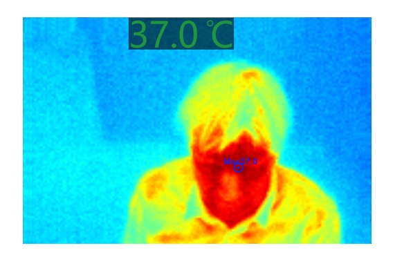infraSpector thermal entry screening image